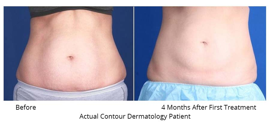 Before and After front abdomen CoolSculpting