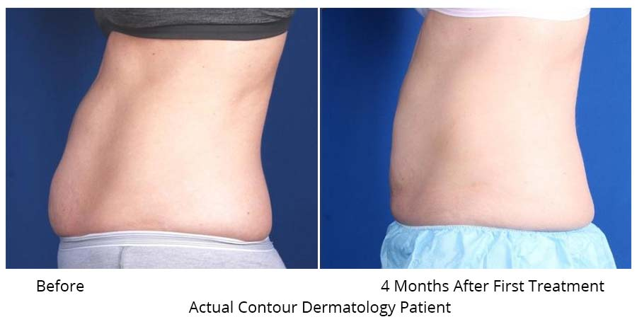 Abdomen Before and After CoolSculpt