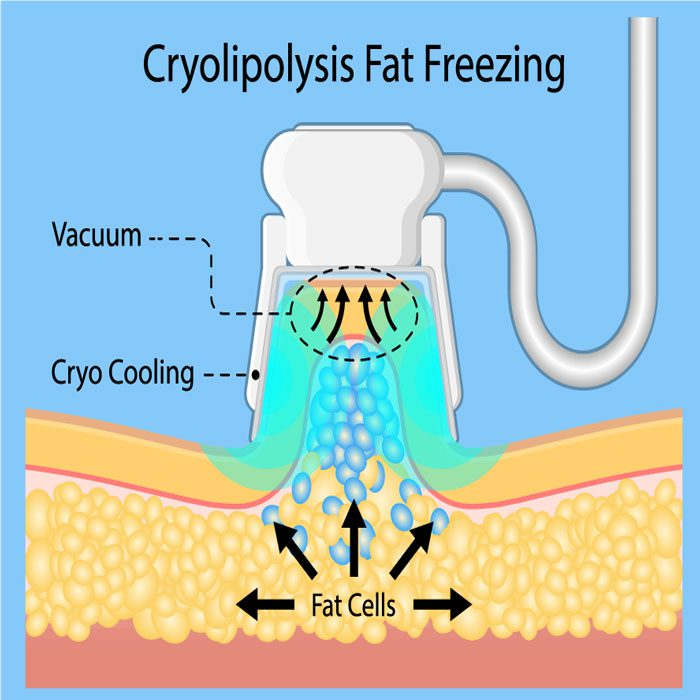 Cryolipolysis Fat Freezing CoolSculpting
