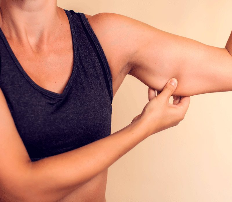 Woman Showing Her Upper Arm Fat